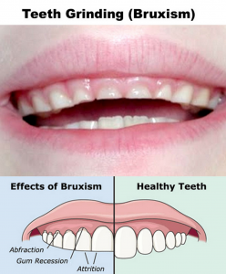 Nighttime Teeth-Grinding (Bruxism)