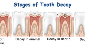 Dental Caries (Tooth Decay) Treatment In Children