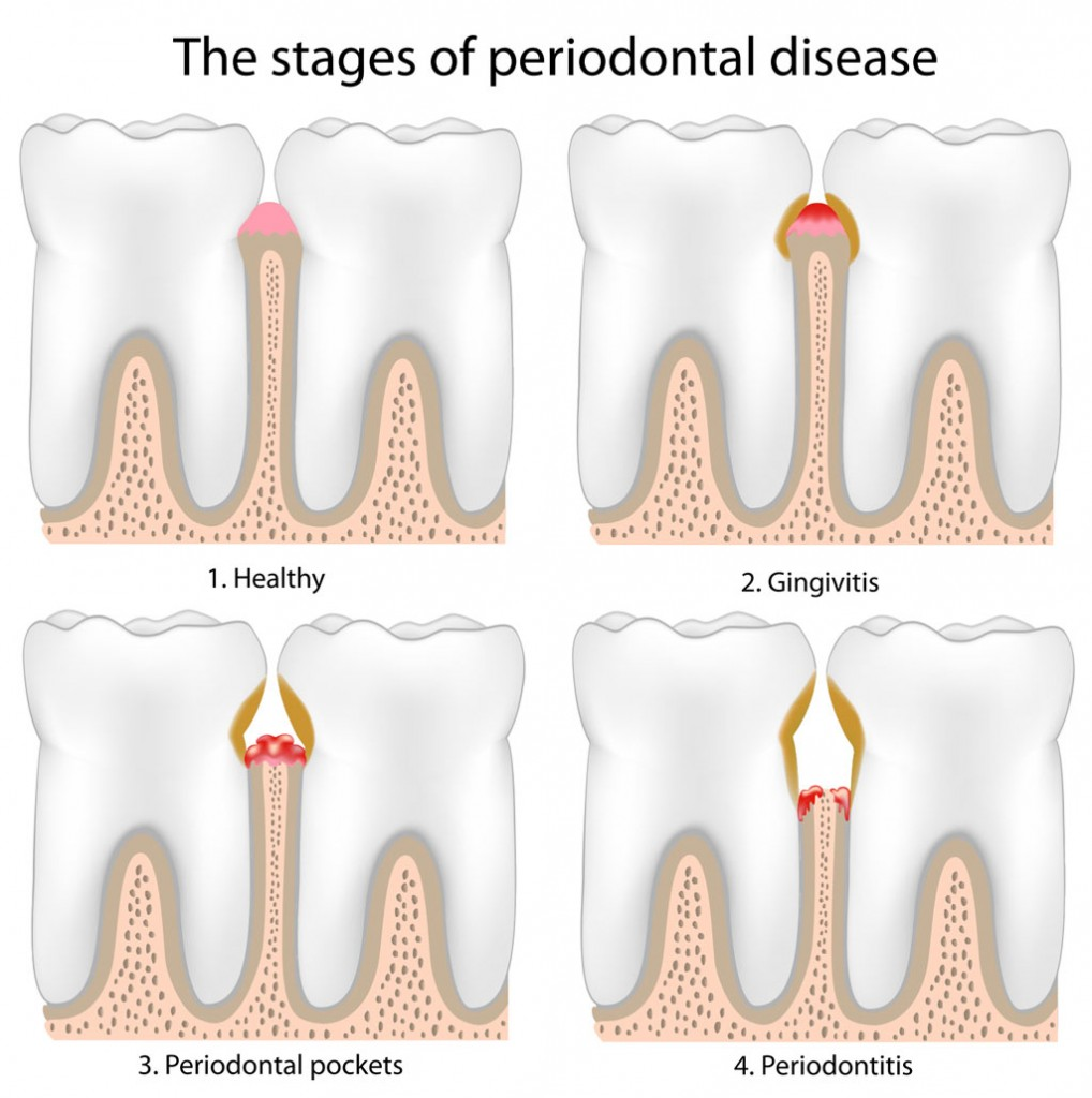 gum disease gingivitis