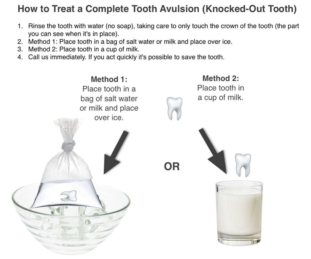 child Knocked-Out Tooth -Tooth Avulsion