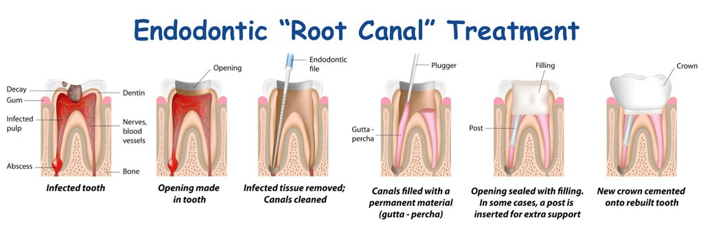 root canal for dental decay